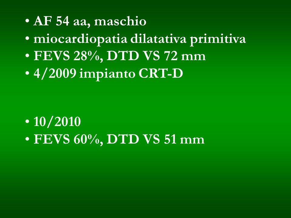 AF 54 aa, maschiomiocardiopatia dilatativa primitiva. FEVS 28%, DTD VS 72 mm. 4/2009 impianto CRT-D.