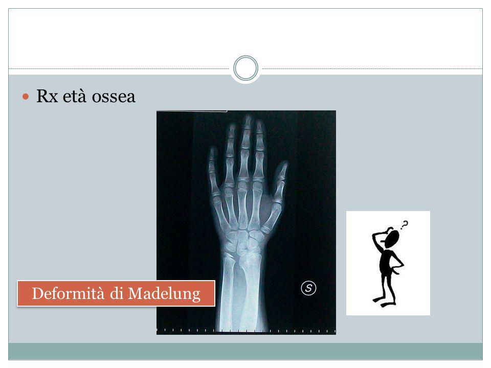 Rx età ossea Deformità di Madelung