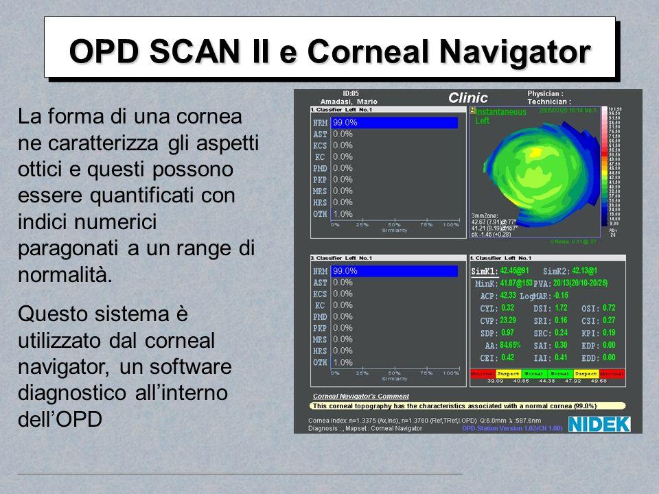 OPD SCAN II e Corneal Navigator