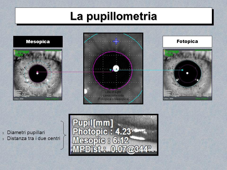 La pupillometria LOS Diametri pupillari Distanza tra i due centri