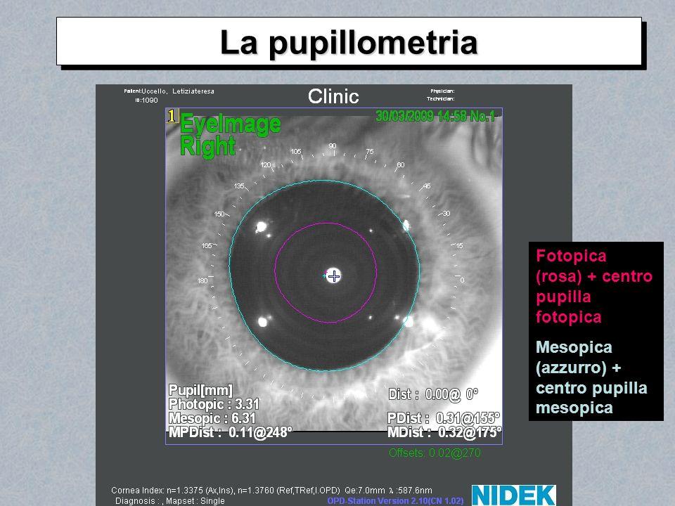 La pupillometria Fotopica (rosa) + centro pupilla fotopica