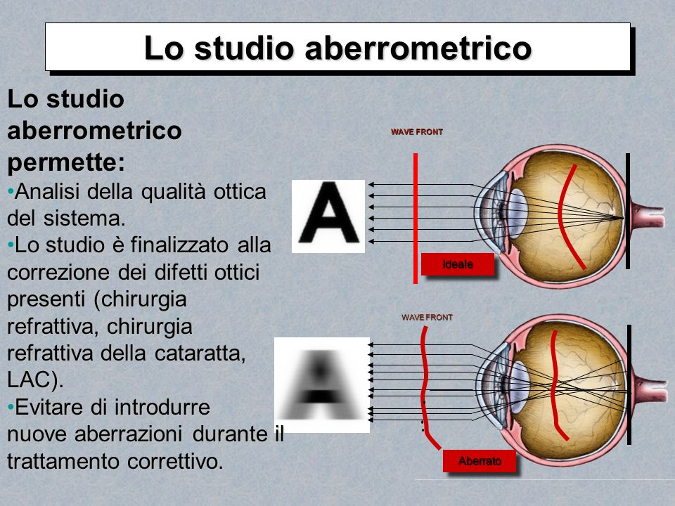 Lo studio aberrometrico