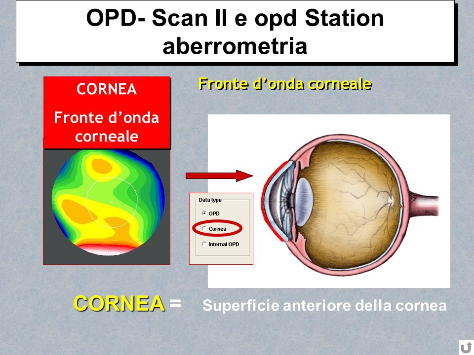 OPD- Scan II e opd Station aberrometria