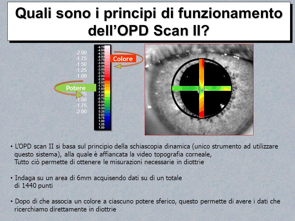 Quali sono i principi di funzionamento dell'OPD Scan II