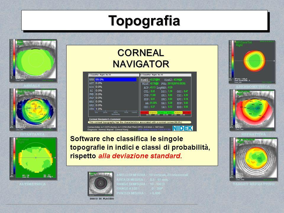Topografia CORNEAL NAVIGATOR