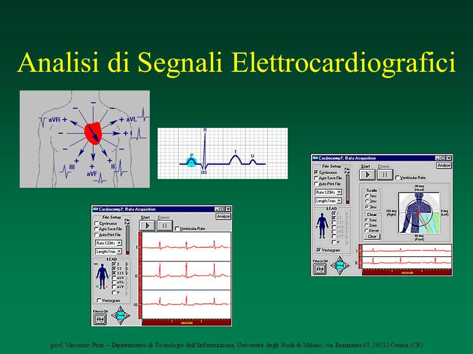 Analisi di Segnali Elettrocardiografici