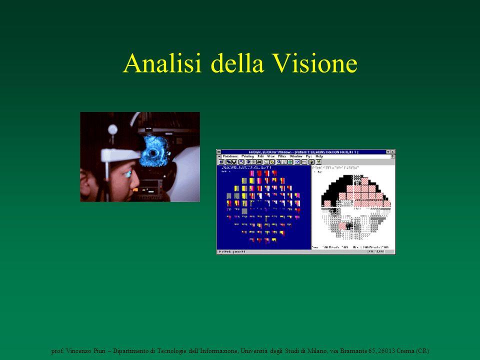 Analisi della Visione