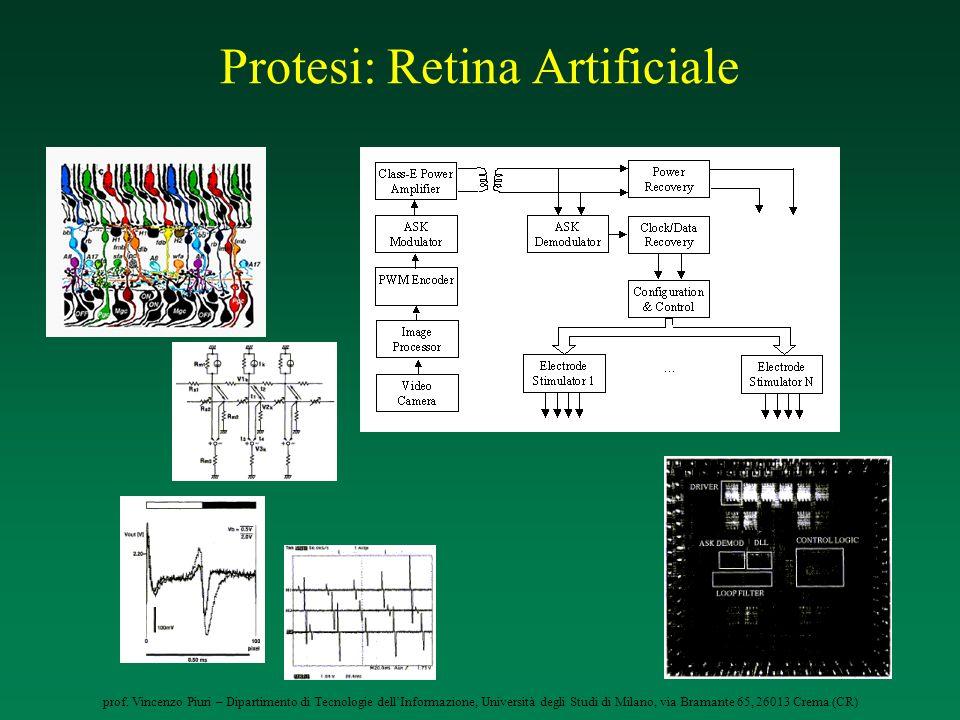 Protesi: Retina Artificiale