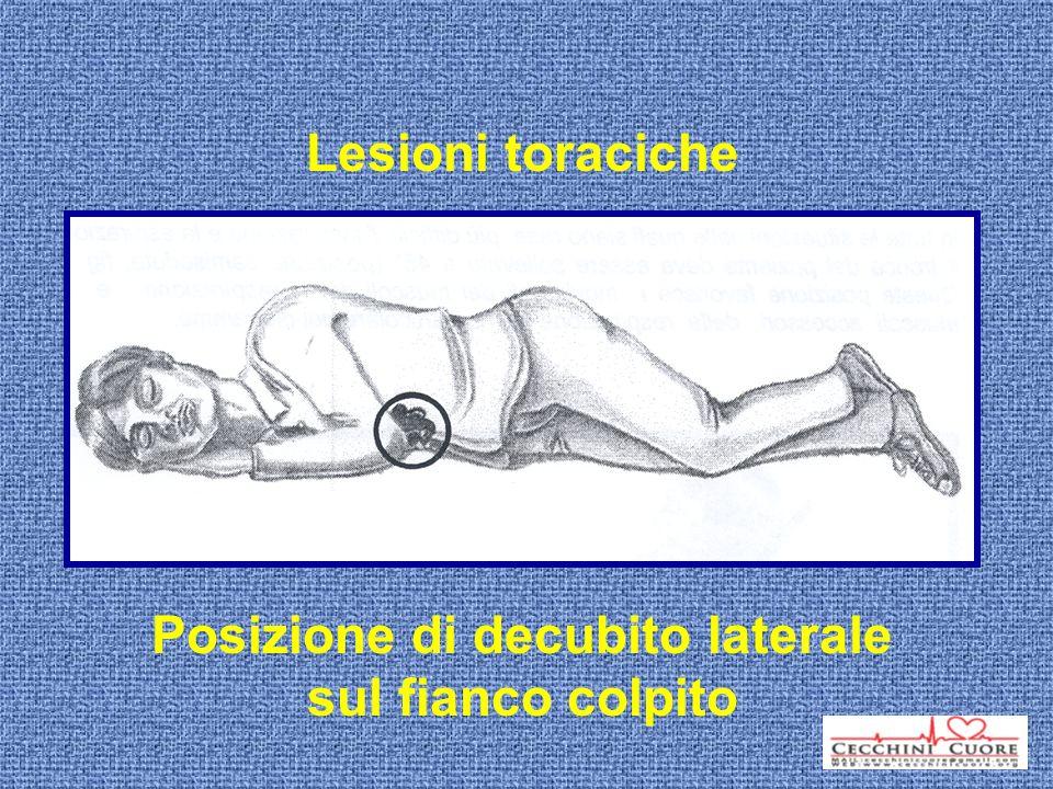 Posizione di decubito laterale sul fianco colpito