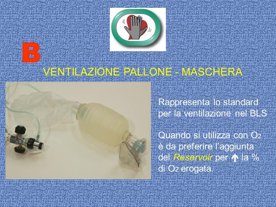 B VENTILAZIONE PALLONE - MASCHERA Rappresenta lo standard
