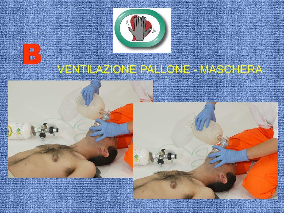 B VENTILAZIONE PALLONE - MASCHERA