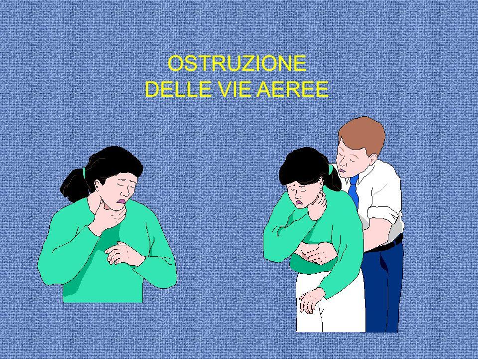 OSTRUZIONE DELLE VIE AEREE