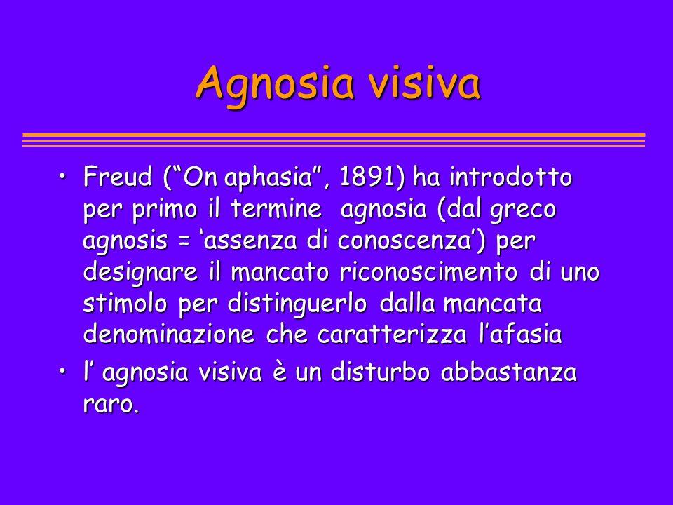 Agnosia visiva