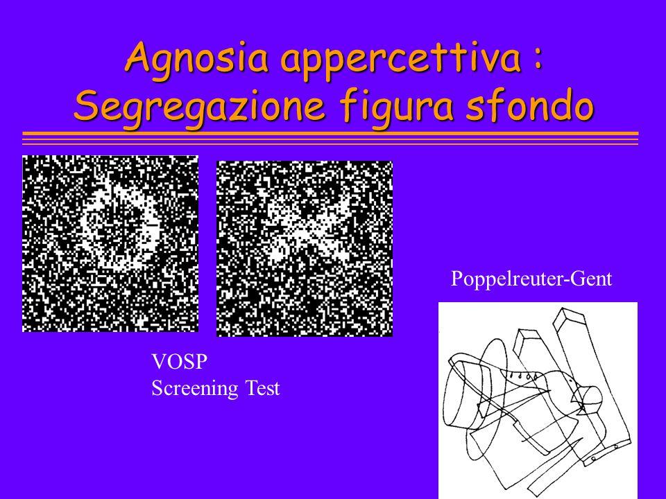 Agnosia appercettiva : Segregazione figura sfondo