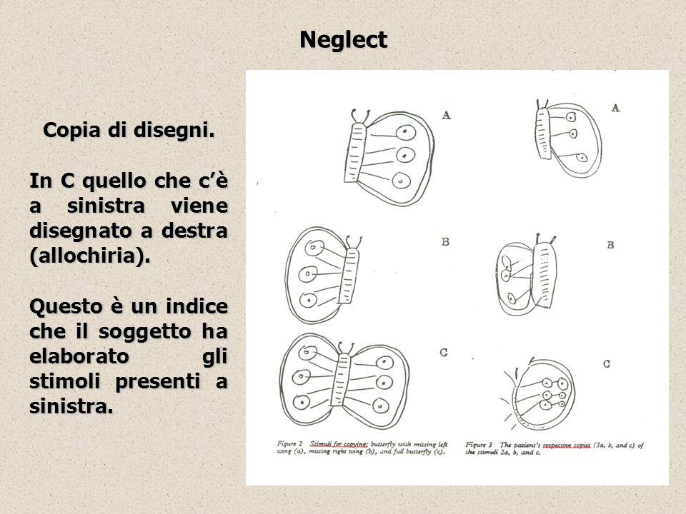 Neglect Copia di disegni.