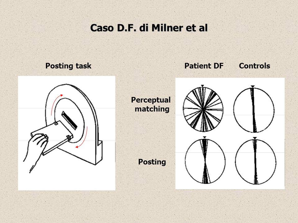 Caso D.F. di Milner et al Posting task Patient DF Controls Perceptual