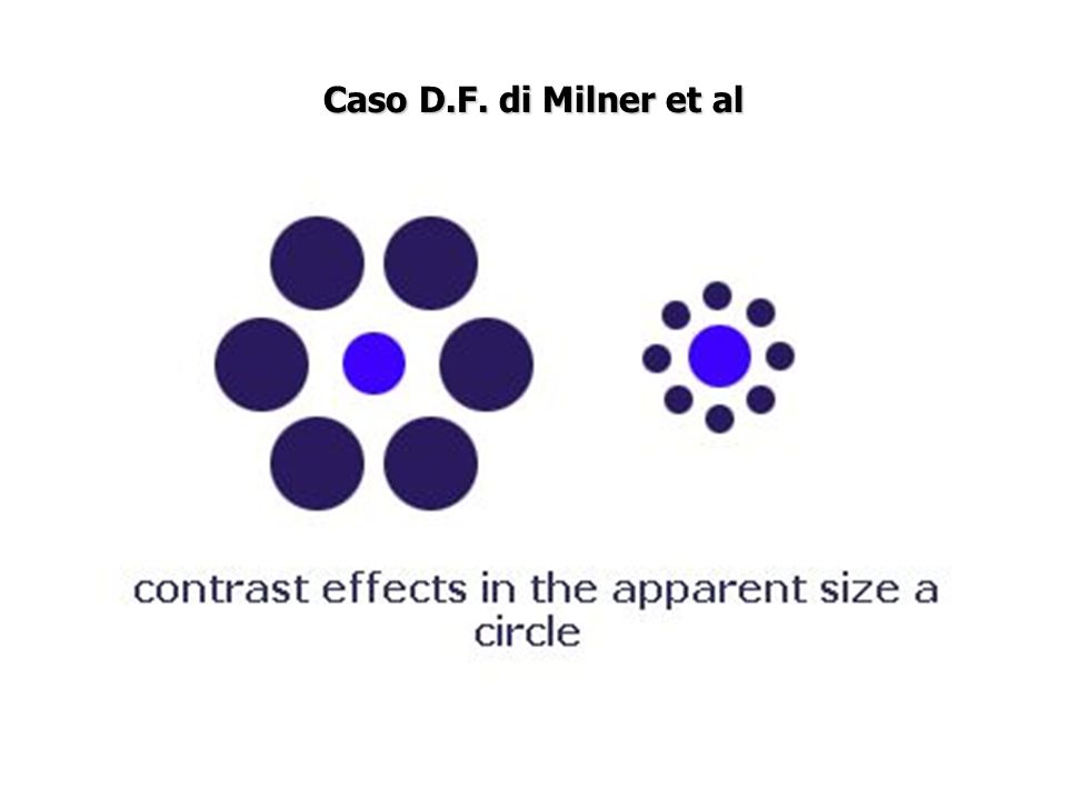 Caso D.F. di Milner et al