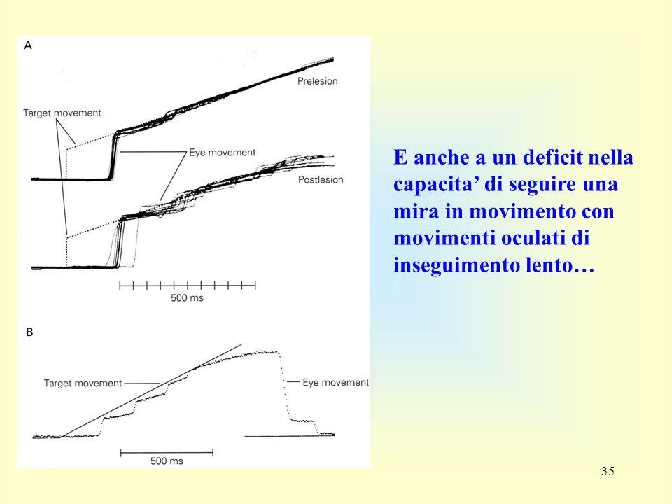 E anche a un deficit nella capacita' di seguire una mira in movimento con movimenti oculati di inseguimento lento…