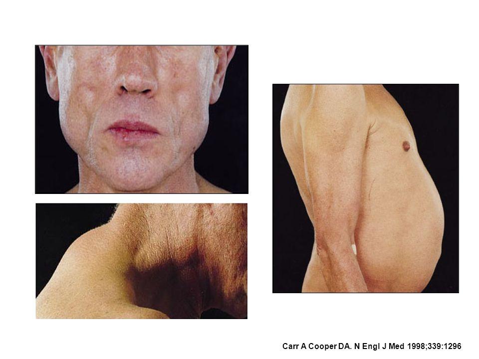 Carr A Cooper DA. N Engl J Med 1998;339:1296