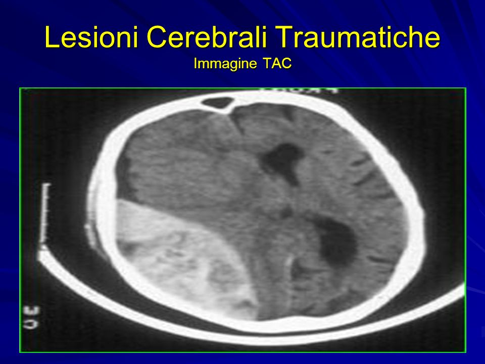 Lesioni Cerebrali Traumatiche Immagine TAC