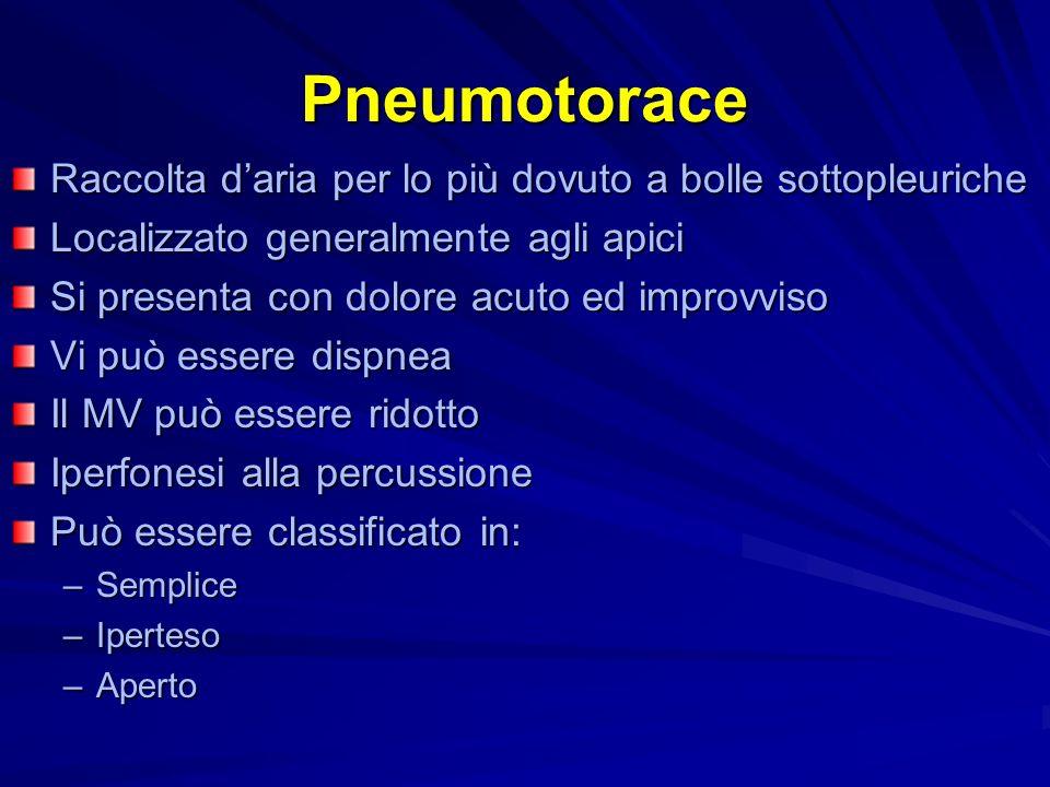Pneumotorace Raccolta d'aria per lo più dovuto a bolle sottopleuriche