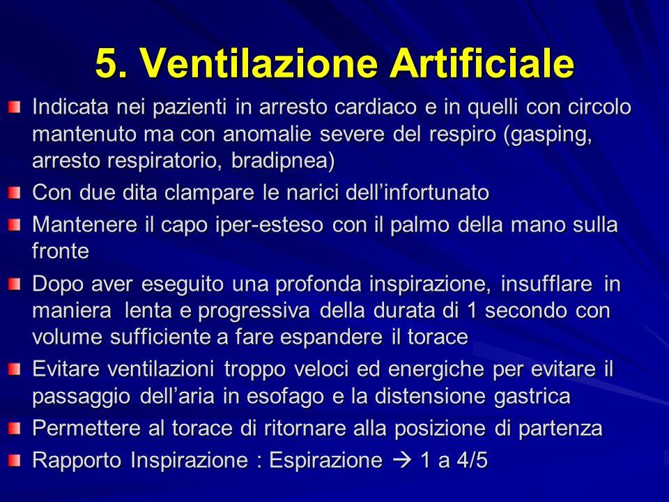 5. Ventilazione Artificiale
