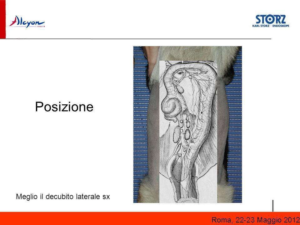 Posizione Meglio il decubito laterale sx