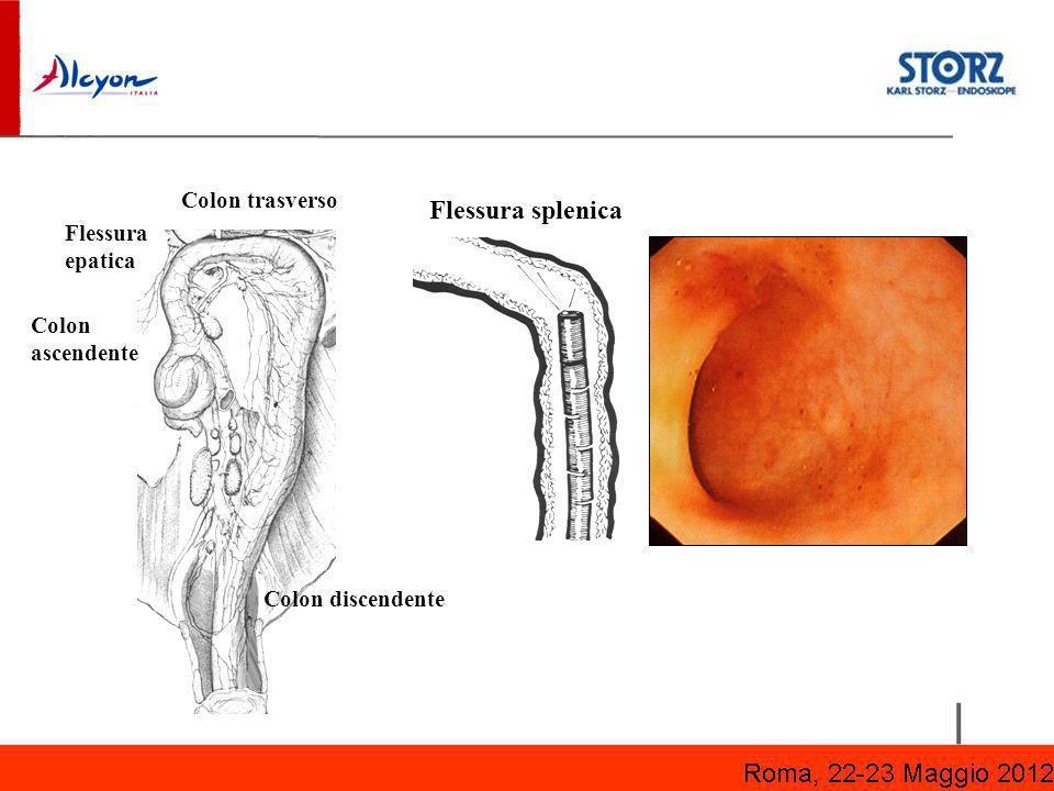 Flessura splenica Colon trasverso Flessura epatica Colon ascendente