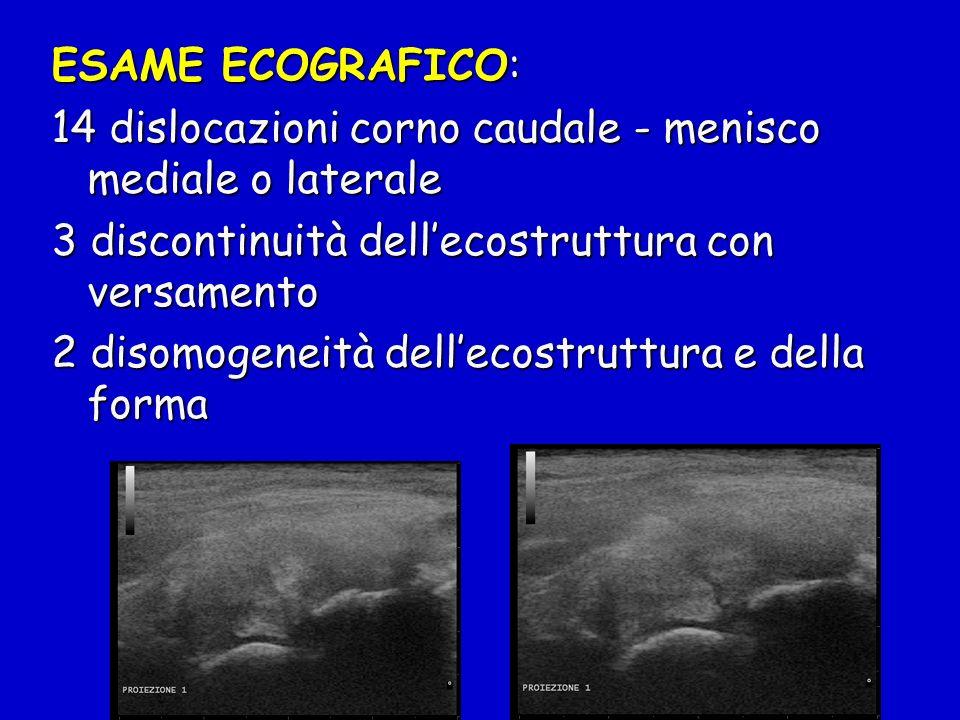 ESAME ECOGRAFICO: 14 dislocazioni corno caudale - menisco mediale o laterale. 3 discontinuità dell'ecostruttura con versamento.