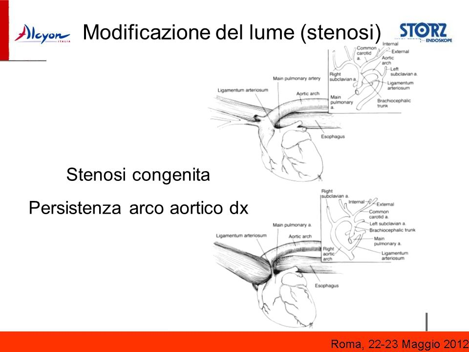 Persistenza arco aortico dx