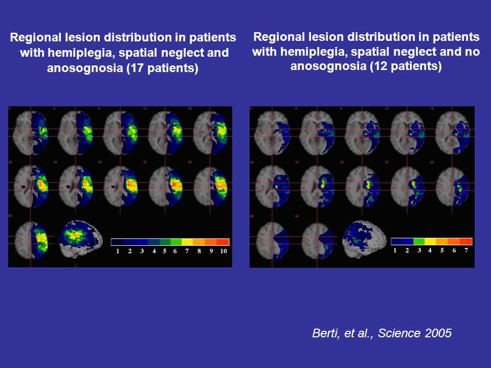 Regional lesion distribution in patients