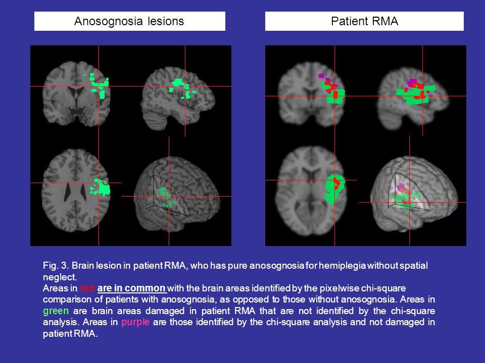 Anosognosia lesions Patient RMA
