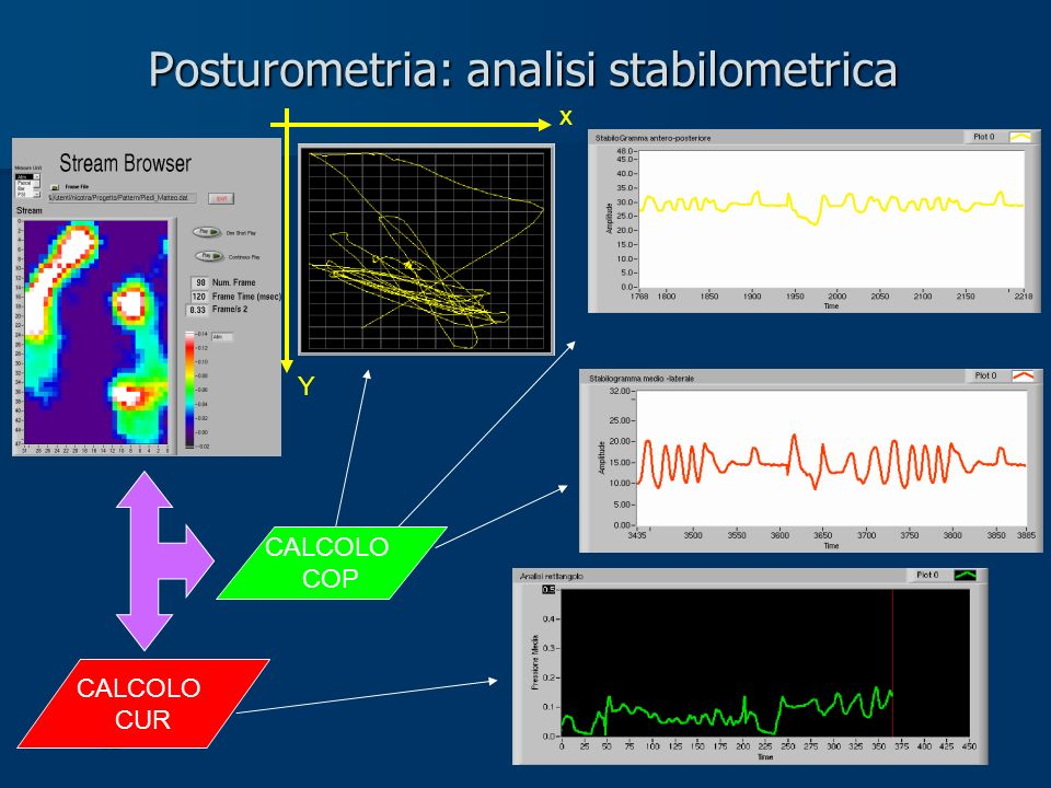 Posturometria: analisi stabilometrica