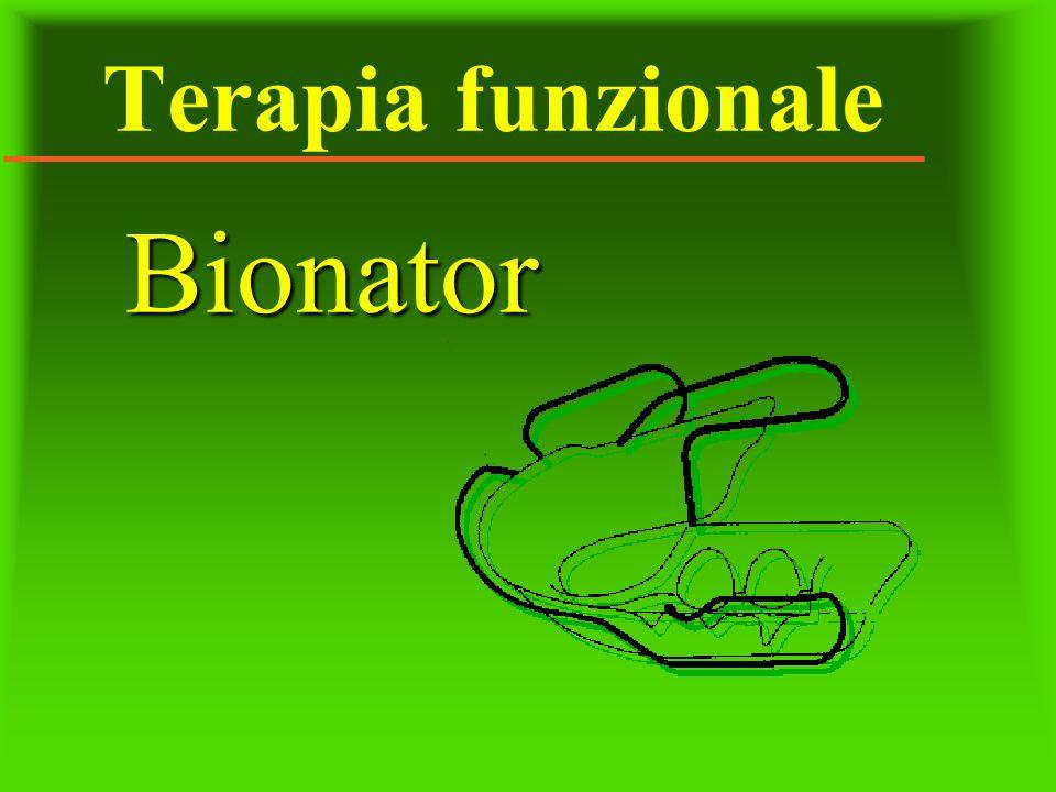 Terapia funzionale Bionator