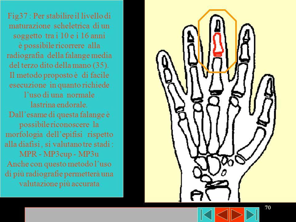 Fig37 : Per stabilire il livello di maturazione scheletrica di un soggetto tra i 10 e i 16 anni