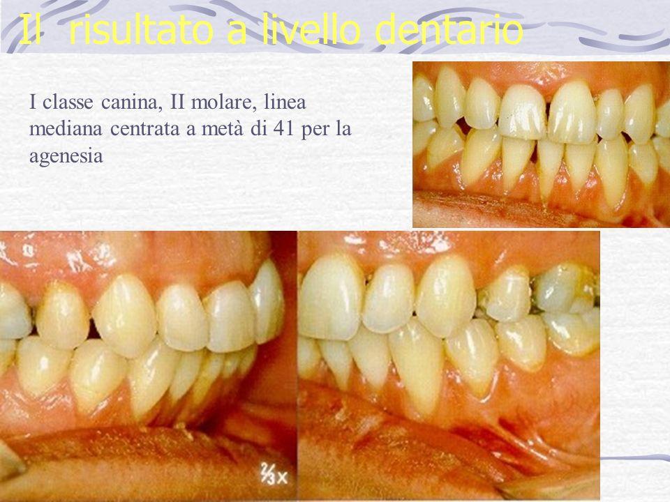Il risultato a livello dentario