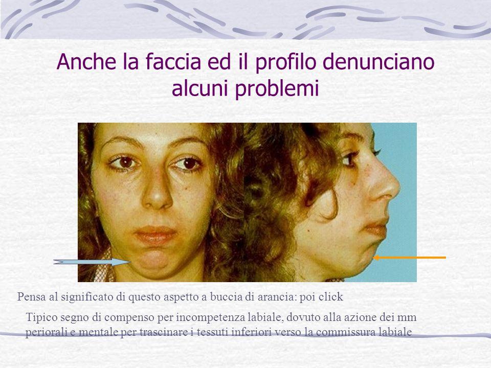 Anche la faccia ed il profilo denunciano alcuni problemi