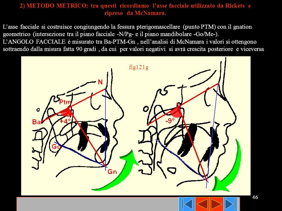 2) METODO METRICO: tra questi ricordiamo l'asse facciale utilizzato da Rickets e