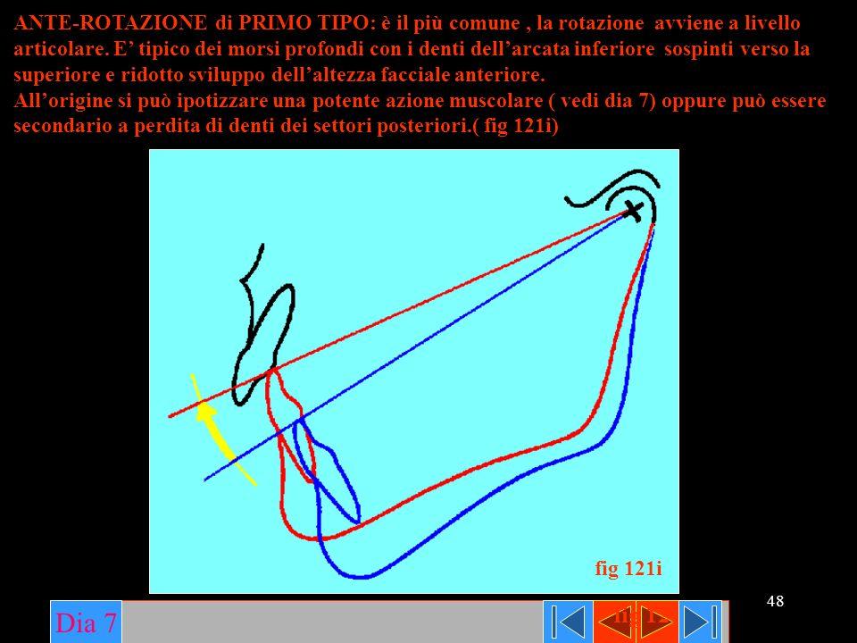 ANTE-ROTAZIONE di PRIMO TIPO: è il più comune , la rotazione avviene a livello articolare. E' tipico dei morsi profondi con i denti dell'arcata inferiore sospinti verso la superiore e ridotto sviluppo dell'altezza facciale anteriore.
