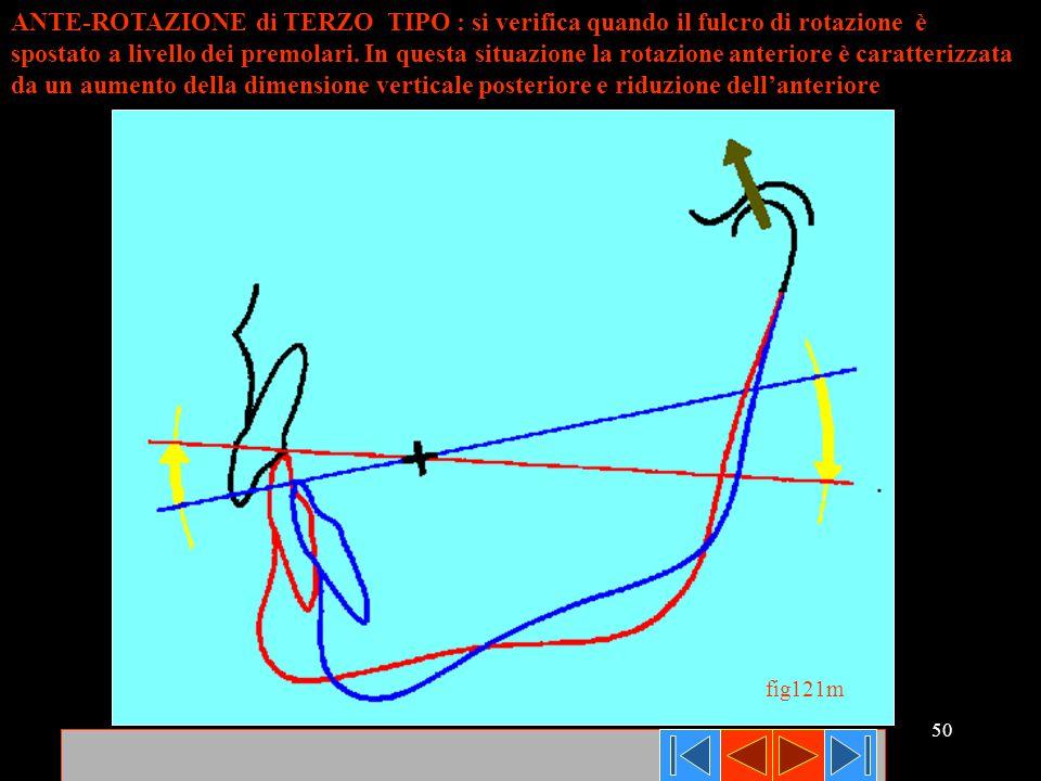 ANTE-ROTAZIONE di TERZO TIPO : si verifica quando il fulcro di rotazione è