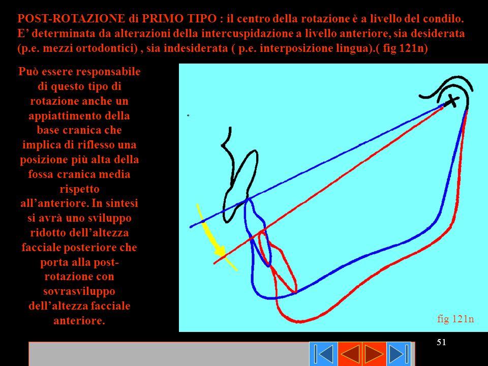 POST-ROTAZIONE di PRIMO TIPO : il centro della rotazione è a livello del condilo.