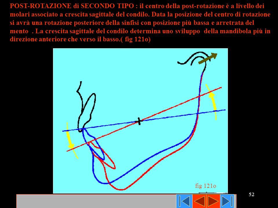 direzione anteriore che verso il basso.( fig 121o)