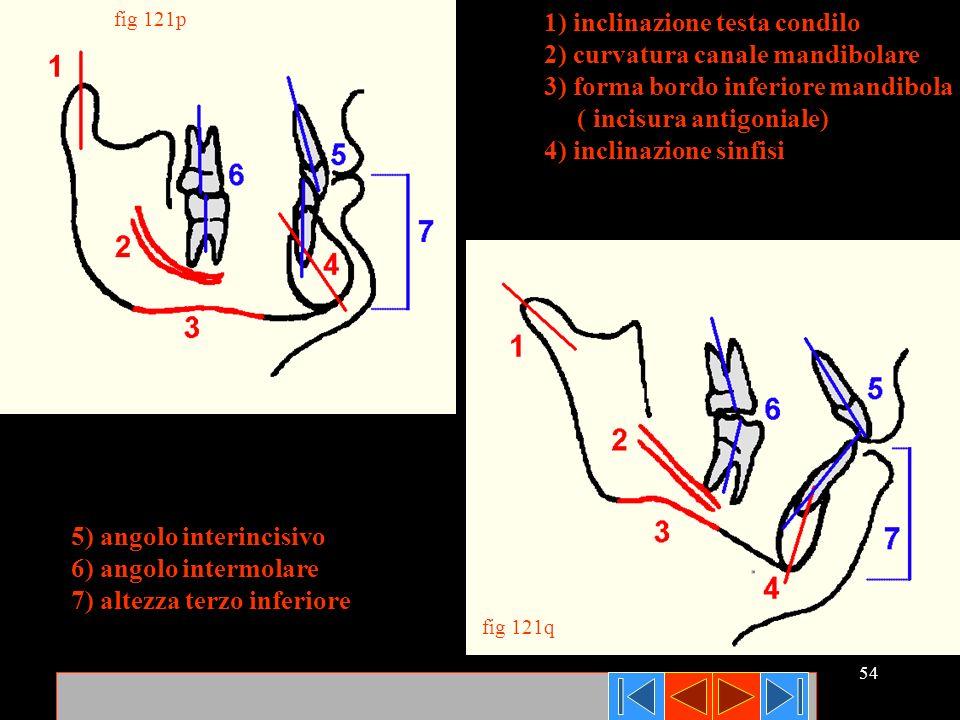 1) inclinazione testa condilo 2) curvatura canale mandibolare
