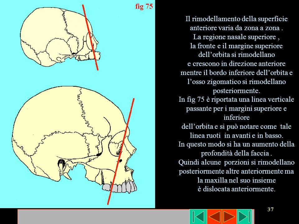 Il rimodellamento della superficie anteriore varia da zona a zona .