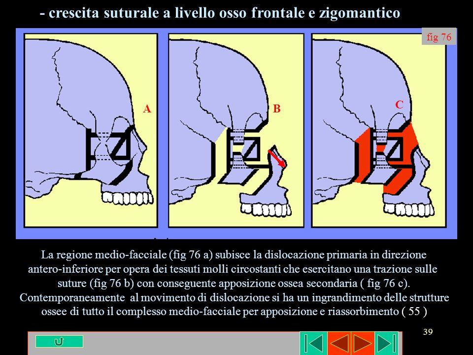 - crescita suturale a livello osso frontale e zigomantico
