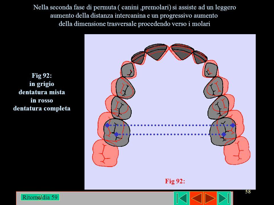 Fig 92: in grigio dentatura mista in rosso dentatura completa