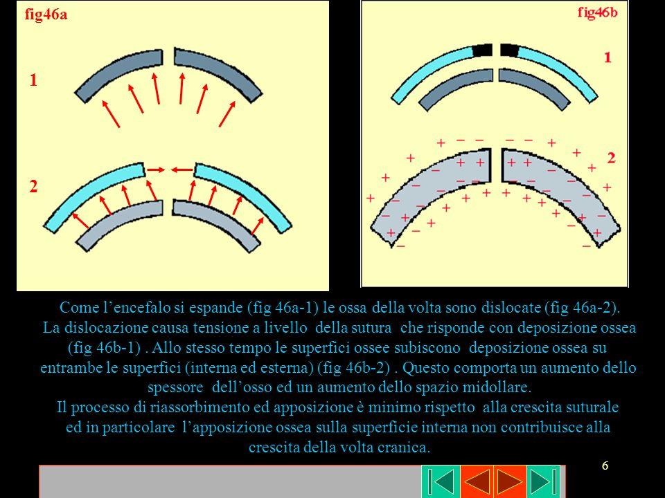 fig46a1. 2. Come l'encefalo si espande (fig 46a-1) le ossa della volta sono dislocate (fig 46a-2).