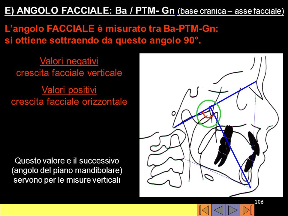 E) ANGOLO FACCIALE: Ba / PTM- Gn (base cranica – asse facciale)