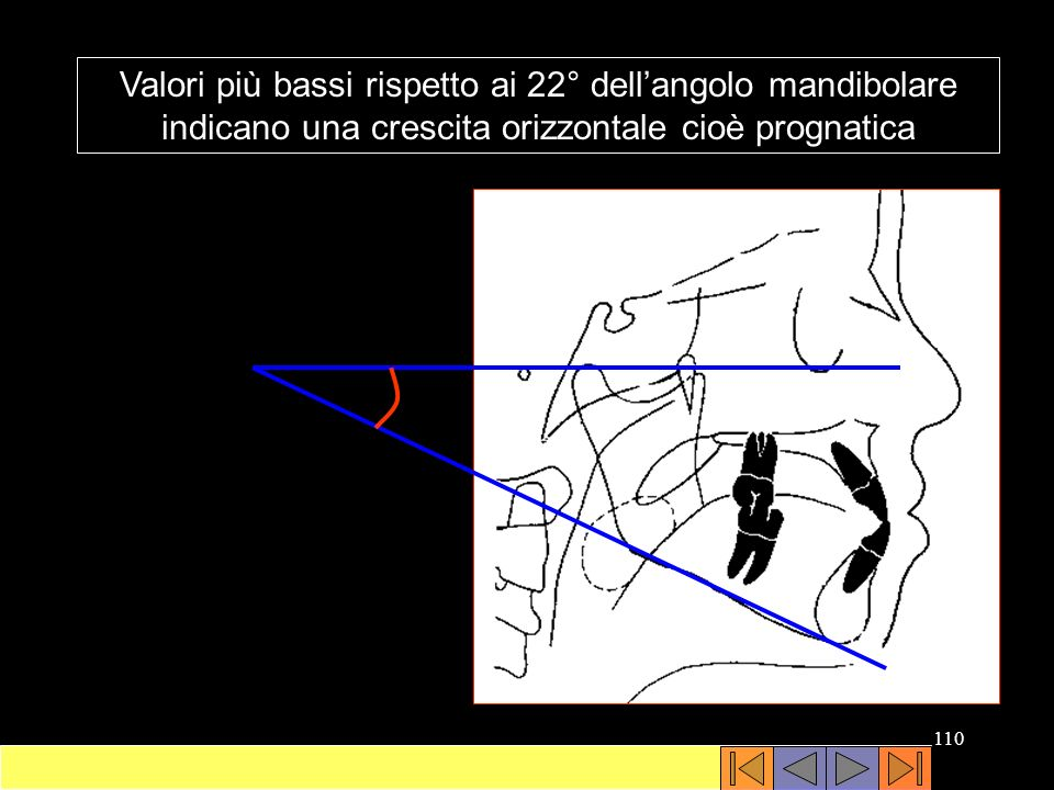 Valori più bassi rispetto ai 22° dell'angolo mandibolare indicano una crescita orizzontale cioè prognatica