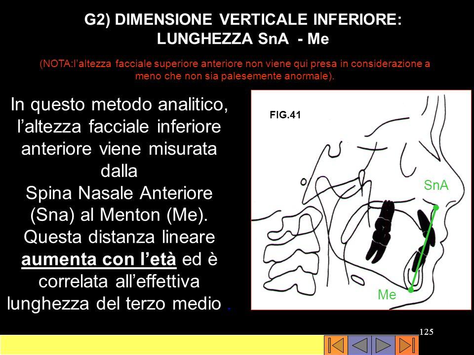 G2) DIMENSIONE VERTICALE INFERIORE: LUNGHEZZA SnA - Me